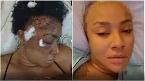 Beryl TV angel Two Years After I Was Shot, Pellets Are Still Coming Out Of My Head - Actress Angela Okorie News Nigeria Daily Entertainment News | Top headlines | Celebrity News and lifestyle - Beryl Tv